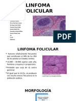 LINFOMA-FOLICULAR-1