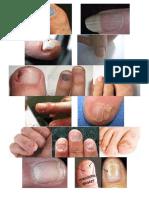 Nail Disease