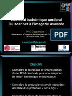 1. Imagerie des infarctus cérébraux.pdf