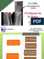 Fractura Huesos de la Mano