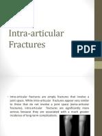 Intra Articular Fractures