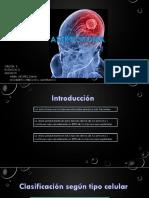 Astrocitoma.pptx