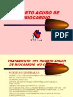 Infarto Agudo de Miocardio2