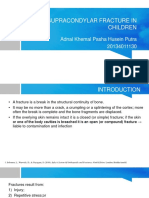 Supracondylar Fracture in Children