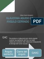 Glaucoma Agudo de Angulo Cerrado