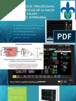 electrocardiograma miguel.pptx