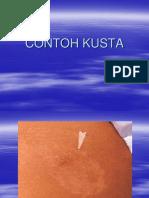 KUSTA-GB