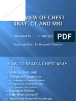 OVERVIEW OF CHEST XRAY, ct and mri_1.pptx