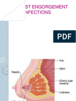 breast engorgement.pdf