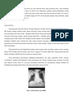 lung abscess case report.docx