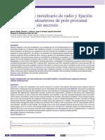 Bloqueo óseo metafisario de radio y fijación estable en seudoartrosis de polo proximal de escafoides sin necrosis.