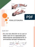 fenilcetonuria.pptx