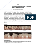 Abstract Manipulating Resin Composite for Multiple Caries