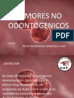 TUMORES 1.pptx