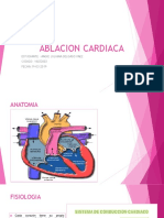 ablacion cardiaca