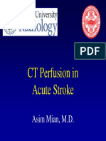 CT Perfusion in acute stroke