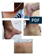 DERMATITIS FOTOS.docx