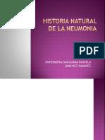 Historia Natural de La Neumonia