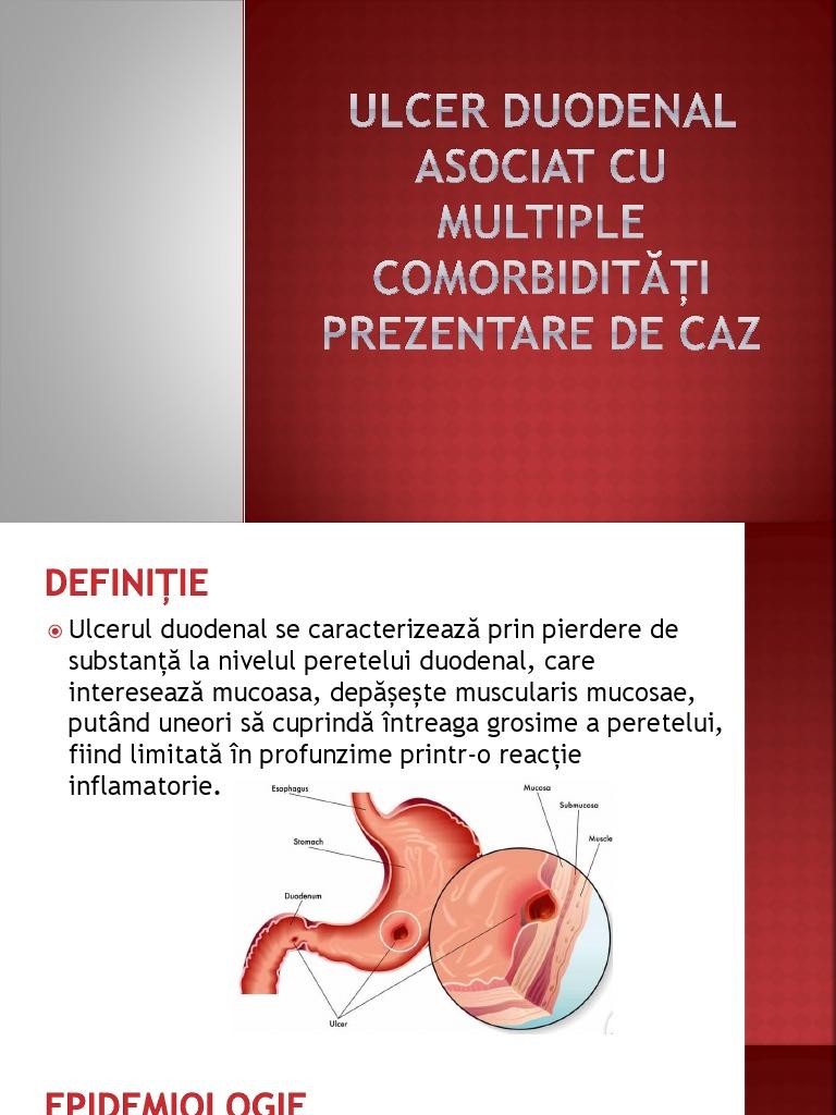 ulcerele duodenale pot provoca pierderea în greutate
