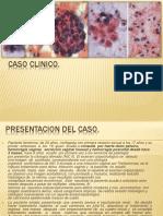 Caso Clinico CA Epidermoide