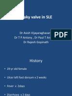 Leaky Valve in SLE