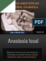 tecnicasanestesicasmaxilacamilla-140331175737-phpapp01