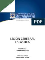 Lesion Espastica