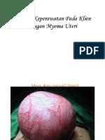 myoma uteri.ppt