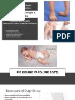 Pie Equino Varo y Displasia de Cadera (1)