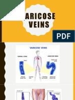 Varicose Veins.pptx