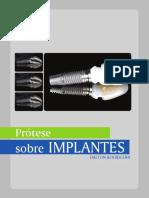 Manual_Implante_Dalton.pdf