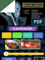 FRACTURAS-EXPUESTAS clasificacion