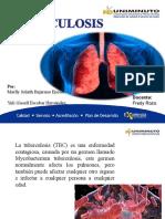 FERIA Tuberculosis