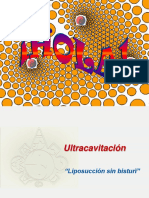 Ultracavitación