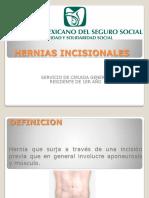 Hernias Incisionales