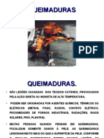 QUEIMADURAS.ppt