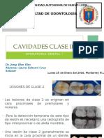 Cavidades Clase II