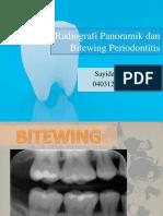 Gambar radiografi denga bone loss (periodontitis)
