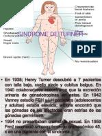 Sindrome de Turner