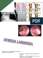 Malformaciones del sistema respiratorio