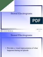 Electrograms