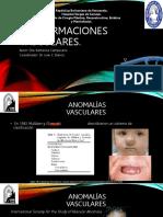Malformaciones vasculares.pptx
