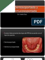 clase-3-diferencia-entre-la-prtesis-parcial-removible-dentosoportada.pptx