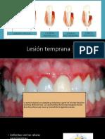 Lesion Temprana 2.0