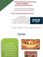 Fracturas dentaes