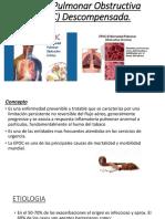Enfermedad Pulmonar Obstructiva Crónica(EPOC)