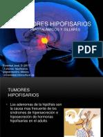 2tumoreshipofisarios-170326191102.pptx