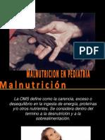 MALNUTRICION - PEDIATRIA