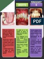 Enfermedades Causadas Por Caries Dentales 2