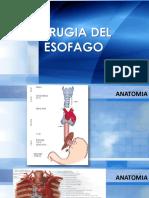 cirugiadelesofago.pdf